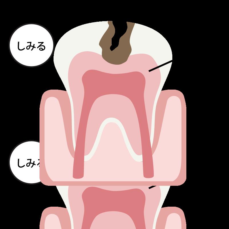 象牙質の虫歯(C2)の場合