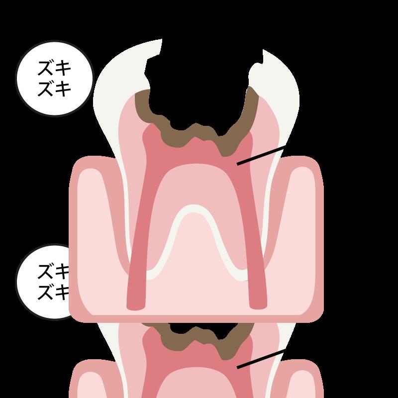 神経まで侵食した虫歯(C3)の場合