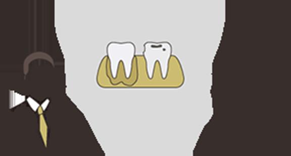 エナメル質の虫歯(C1)の場合